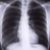Zapalenie i nowotwory