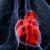 Choroby mięśnia sercowego